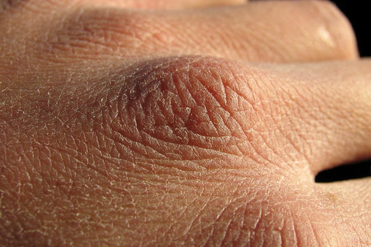De ce ti se usuca pielea cand stai prea mult timp in casa? Care sunt principalii vinovati?